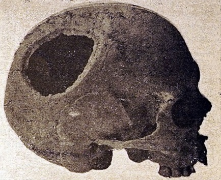 An example of a trepanation